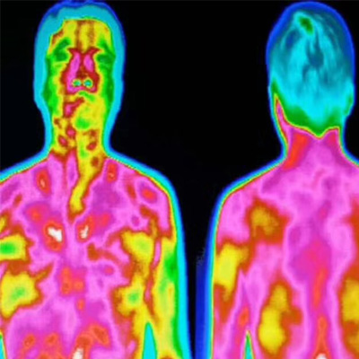 远红外热成像仪器检测